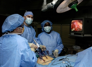 Laparoscopic stomach surgery