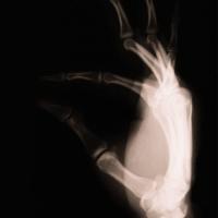 thumb_xray_hand.JPG